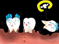 歯周病画像